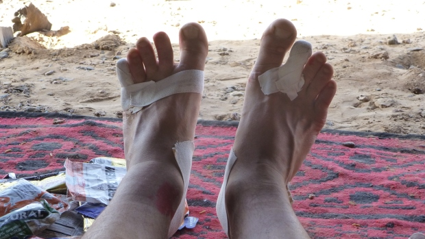 Repaired toes.